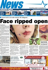 Face ripped open